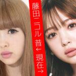 藤田ニコルほうれい線消えた方法がすごい!昔と現在の画像を顔アップで検証!